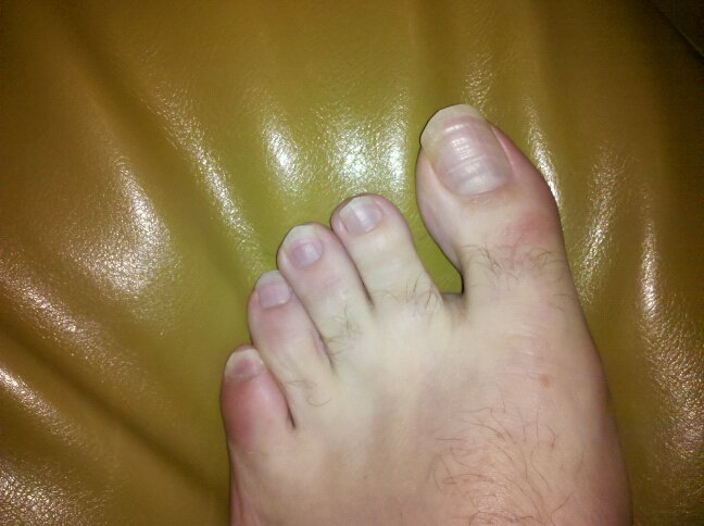 I\'m Too Fat To Cut My Toe Nails – The Fat Yogi